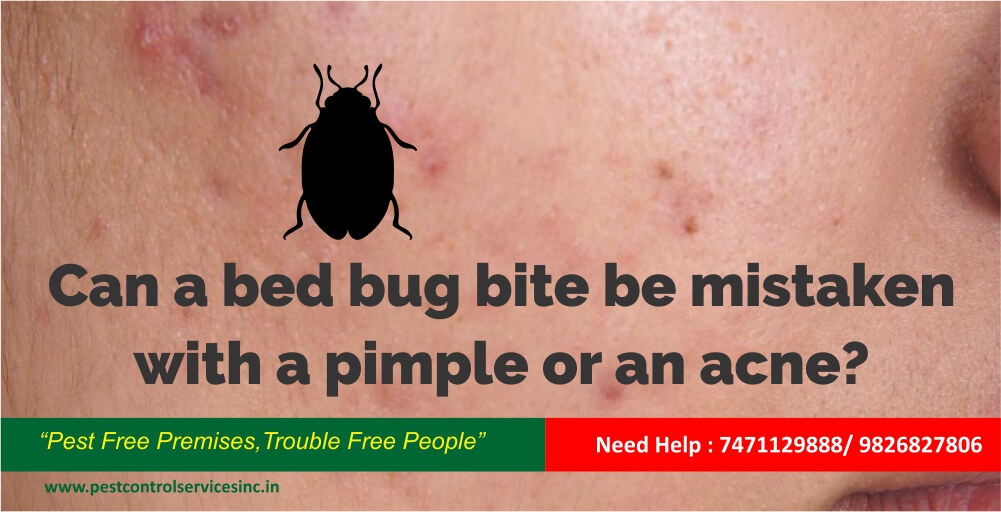 Can A Bed Bug Bite Be Mistaken With A Pimple Or An Acne